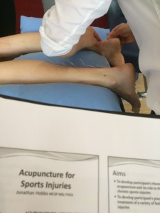 Acupuncture into Achilles tendon